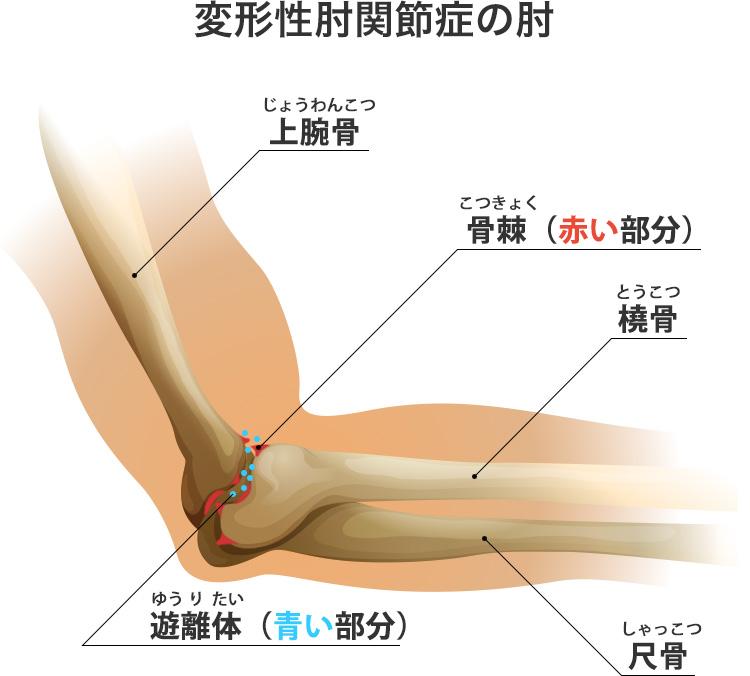 変形性肘関節症の肘