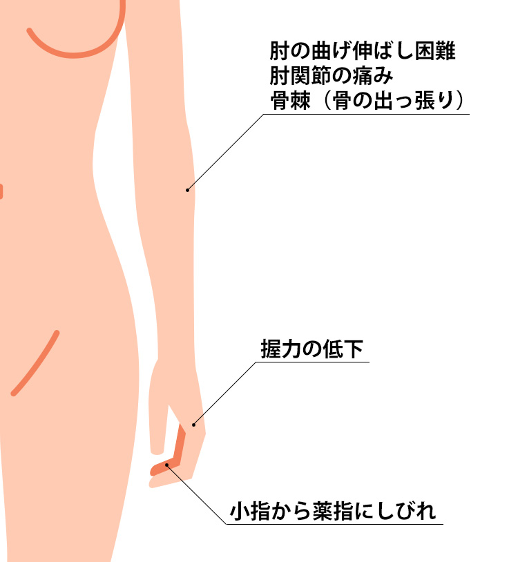 変形性肘関節症の症状