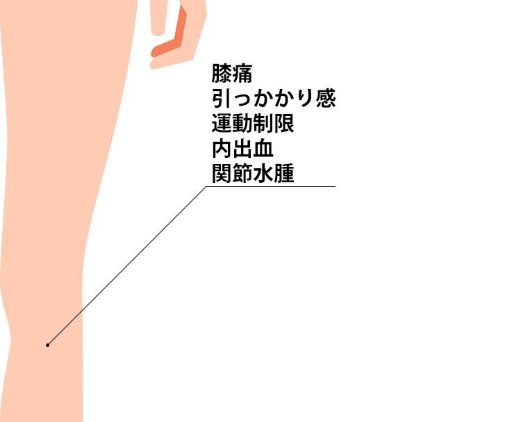 膝半月板損傷の症状