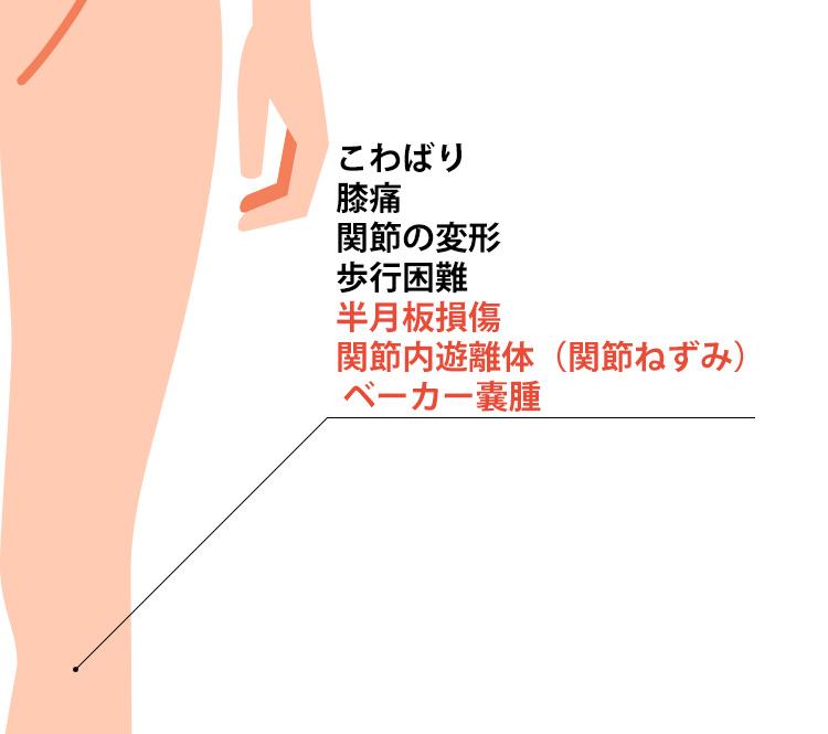 変形性膝関節症の症状