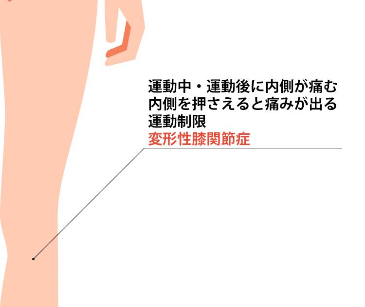 鵞足炎の症状